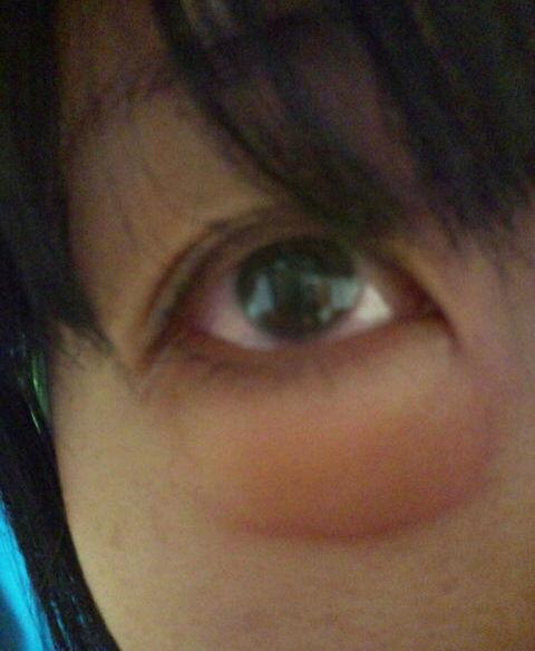 腫れる 目